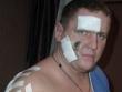 Директор ДНК «Строитель» в Тюмени сам себя искалечил, потом обратился в полицию, а потом исчез?!